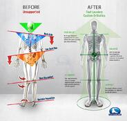 orthotics-great-posture