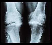 bone-on-bone-knees