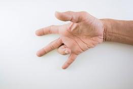 trigger-finger-treatment