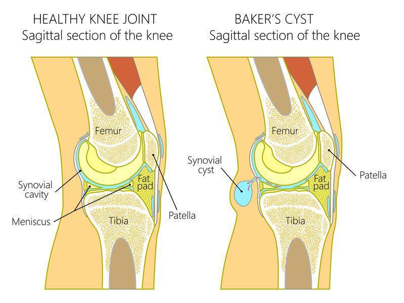 pain-behind-knee