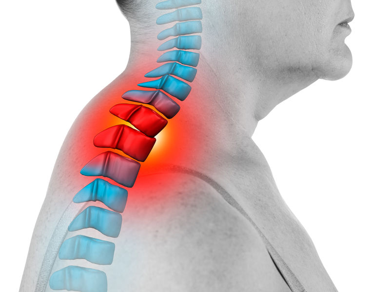 neck-pinched-nerve