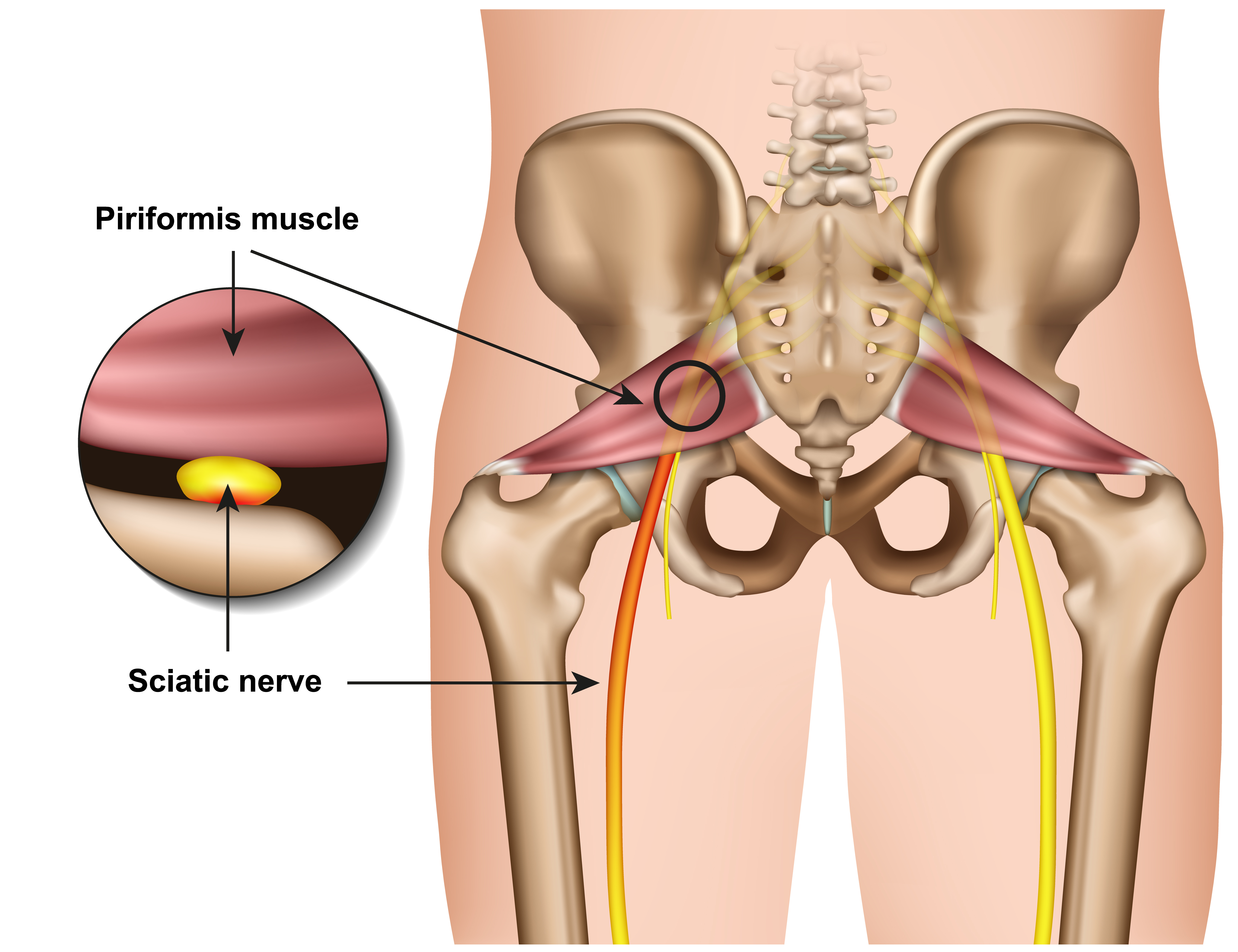 pinched-nerve-hip-pain