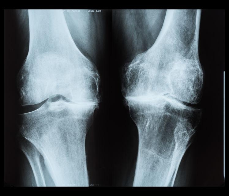 severe-osteoarthritis-knees